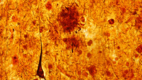 New Clues To ALS And Alzheimer's Disease From Physics
